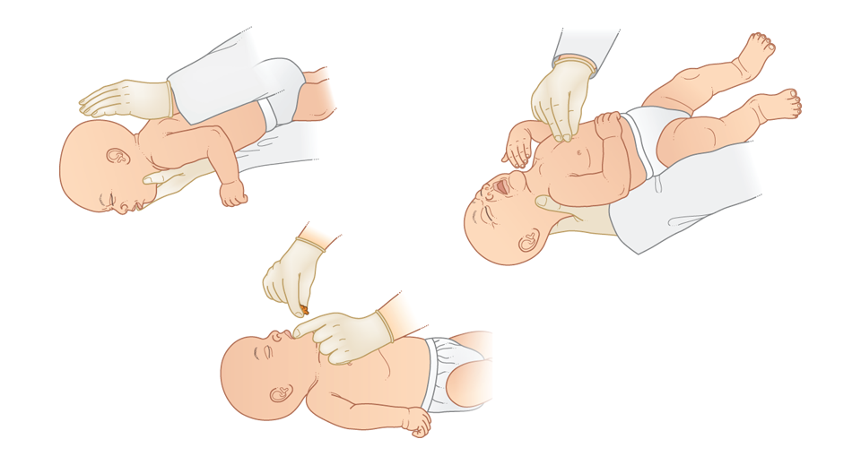 how to unblock airways in babies